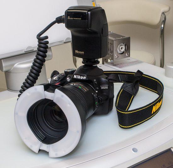 [歯科向け]リングフラッシュ MF18で撮る『上半身記録写真』